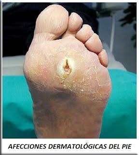 Afecciones dermatológicas del pie