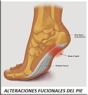 Alteraciones funcionales del pie